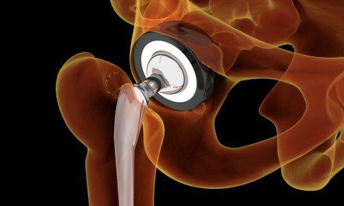 DOCTEUR GUY AMSALLEM - Chirurgie de la hanche - prothèse totale de hanche PTH - PTH mini invasive - PTH récupération améliorée